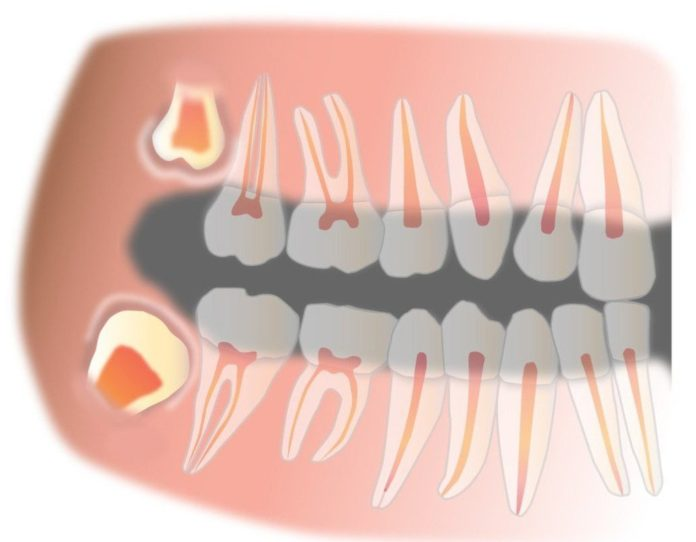 wisdom teeth bad breath