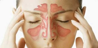 Chronic sinus infection