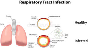 Respiratory tract infections and bad breath